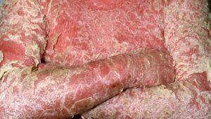 Erythrodermic Psoriasis Symptoms