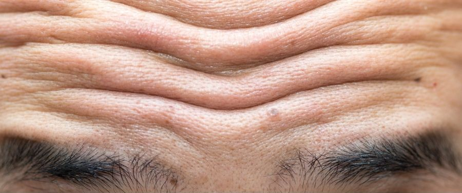 Forehead Wrinkles: How To Get Rid Of Forehead Wrinkles