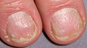 nail-psoriasis-symptoms